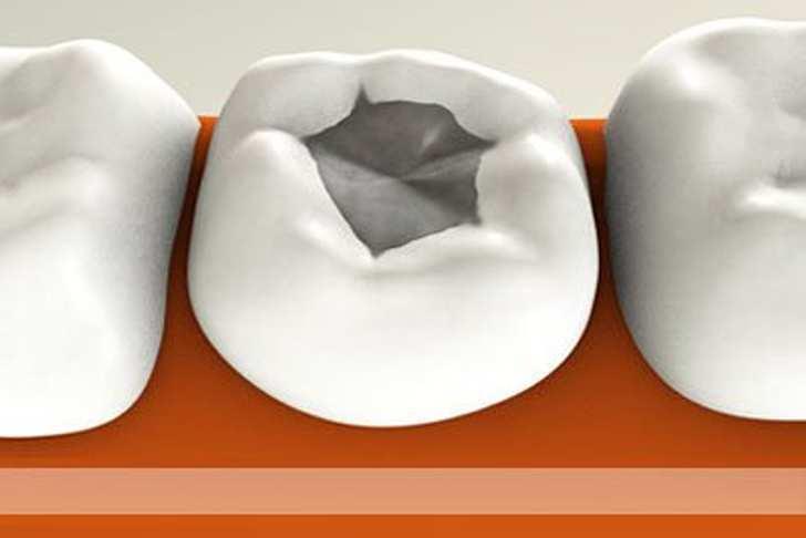 СЕНСАЦИЯ! Ученые изобрели вечную пломбу, которая сама будет лечить зуб!