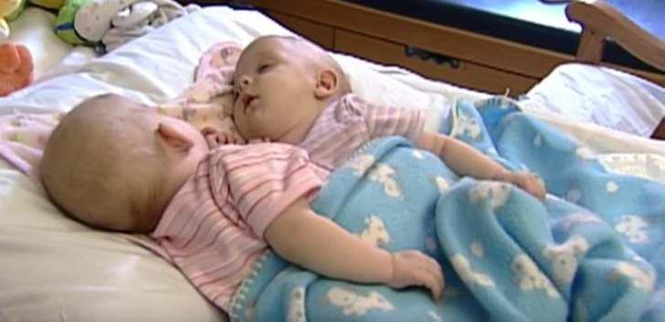 Как живут сиамские близнецы, разделённые 10 лет назад