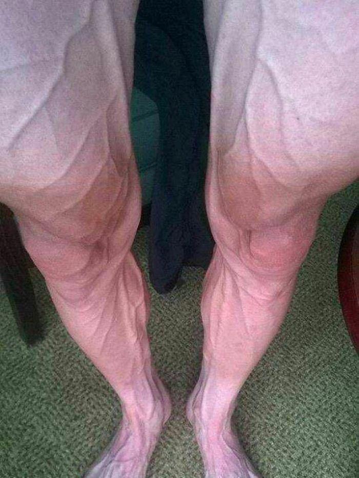 Как выглядят ноги участника Тур де Франс после 16 этапа знаменитой велосипедной гонки