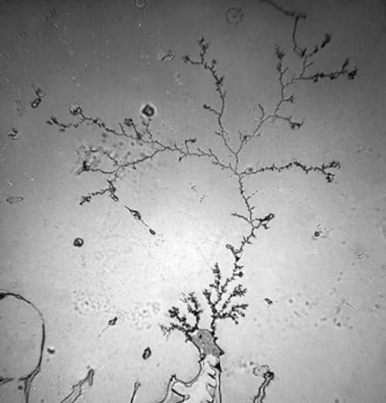 Фотографии слезинок под микроскопом