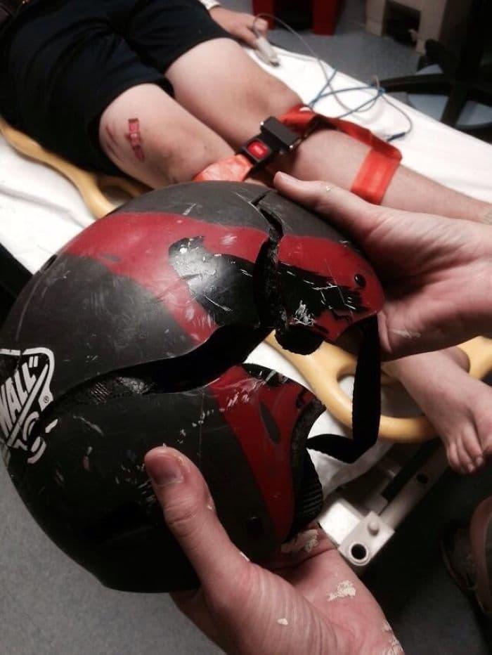 Почему надевать шлем, действительно, необходимо